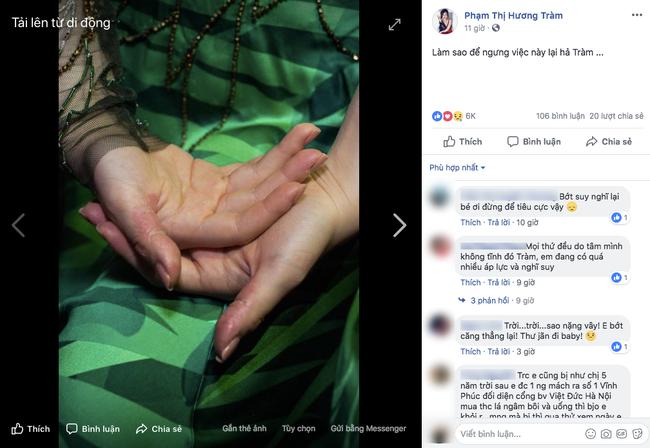 Sao Việt ngược đãi bản thân vì stress: Tự bóc tay đến rỉ máu, thường xuyên nghĩ đến việc tự tử - Ảnh 1.