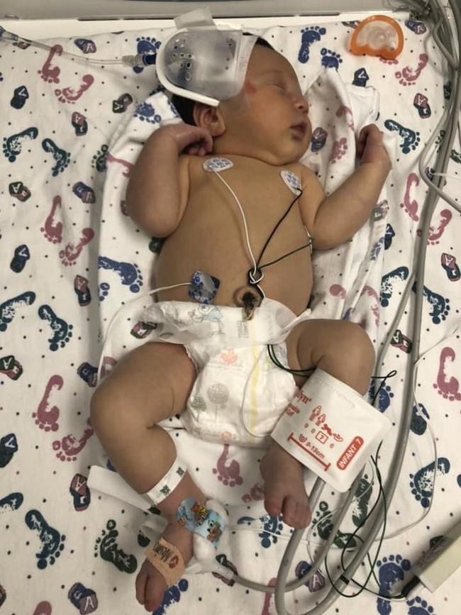 Thêm một em bé sơ sinh 12 ngày tuổi vĩnh viễn ra đi vì mắc virus Herpes từ nụ hôn thần chết - Ảnh 3.