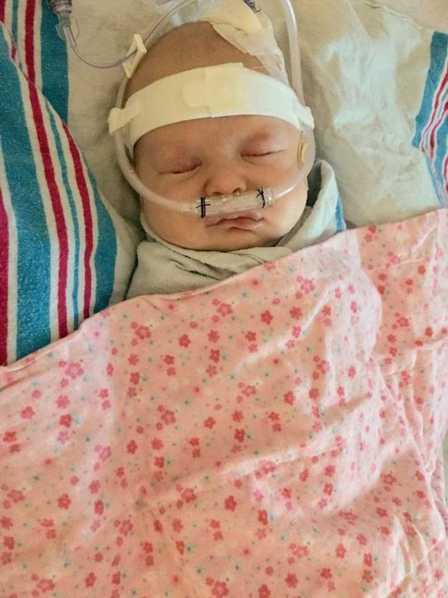 Nhận nụ hôn âu yếm từ anh trai, bé 6 tuần tuổi đã phải chiến đấu chống lại virus RSV đến mức suýt chết - Ảnh 3.