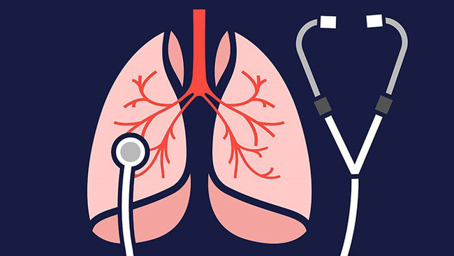 Dù bận mấy cũng nên làm 3 việc vô cùng có lợi cho phổi này vì nó góp phần ngăn ngừa ung thư phổi - Ảnh 5.