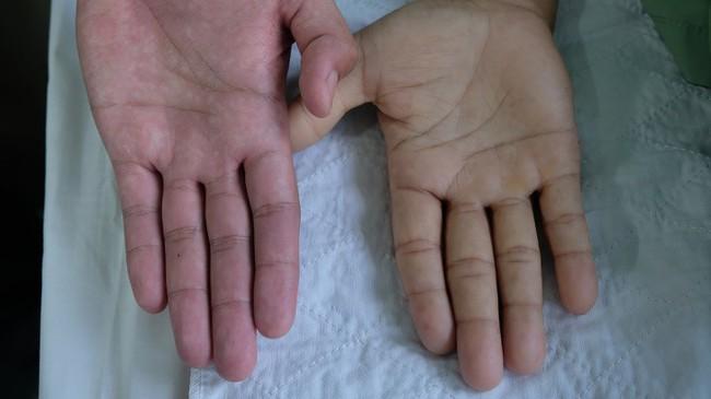 Tỉnh táo với 5 dấu hiệu của bệnh thiếu máu mà không phải ai cũng nhận ra - Ảnh 2.