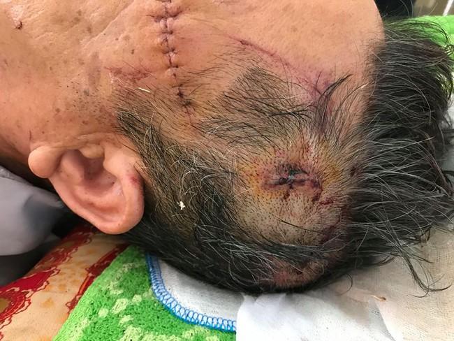Cụ ông bị thương trong vụ nữ chủ nhà bị sát hại ở Hưng Yên kể lại giây phút sinh tử - Ảnh 5.