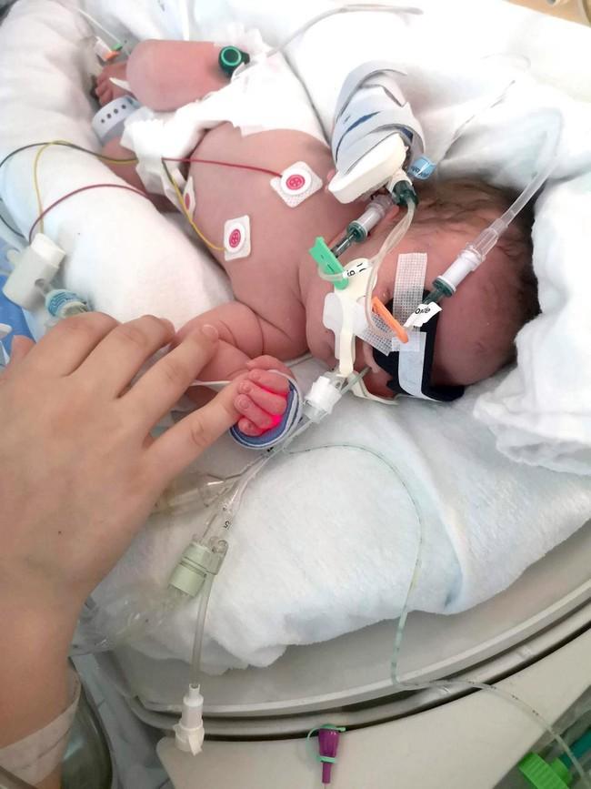 Bé sinh được 5 ngày nhưng mắt vẫn nhắm nghiền, bố mẹ tá hỏa khi biết con mắc chứng rối loạn di truyền hiếm gặp gây mù mắt - Ảnh 2.