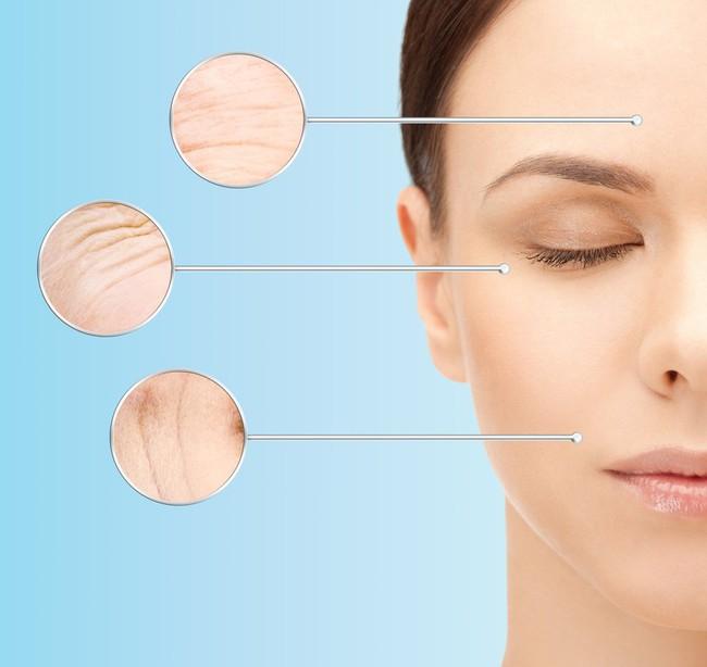 Cô gái 25 tuổi mắc một loạt các bệnh nguy hiểm chỉ vì bổ sung collagen làm đẹp da sai cách - Ảnh 2.