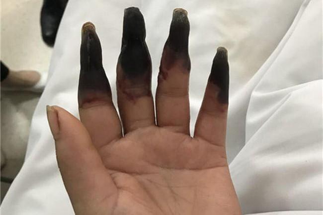 Dọn nhà, người phụ nữ bị hoại tử 8 ngón tay đen sì: Triệu chứng bất thường mọi người phải hết sức cảnh giác - Ảnh 2.