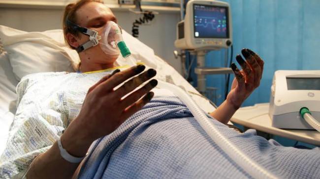 Dọn nhà, người phụ nữ bị hoại tử 8 ngón tay đen sì: Triệu chứng bất thường mọi người phải hết sức cảnh giác - Ảnh 4.