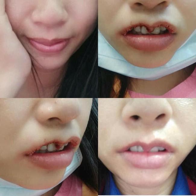 Hình ảnh gây sốc hội chị em: Cô gái định làm môi trái tim căng mọng, ai ngờ cắt lỗi môi hở răng lạnh - Ảnh 1.