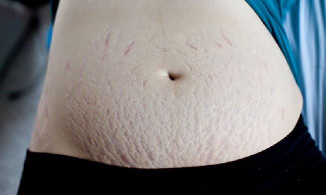Đây là cách mà các bà mẹ có thể thực hiện để làm săn chắc lại da bụng chảy xệ sau khi sinh - Ảnh 1.
