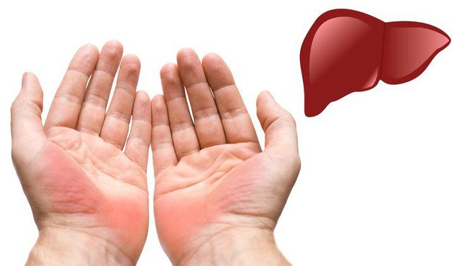 Dấu hiệu ở tay cũng có thể chỉ ra một số vấn đề về sức khỏe, đừng bao giờ bỏ qua dấu hiệu thứ 4 - Ảnh 1.
