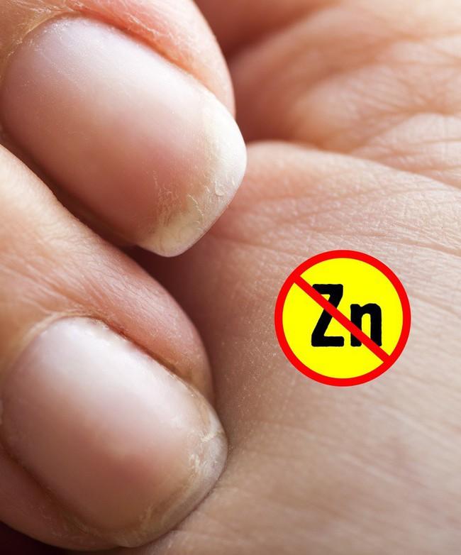 Dấu hiệu ở tay cũng có thể chỉ ra một số vấn đề về sức khỏe, đừng bao giờ bỏ qua dấu hiệu thứ 4 - Ảnh 7.