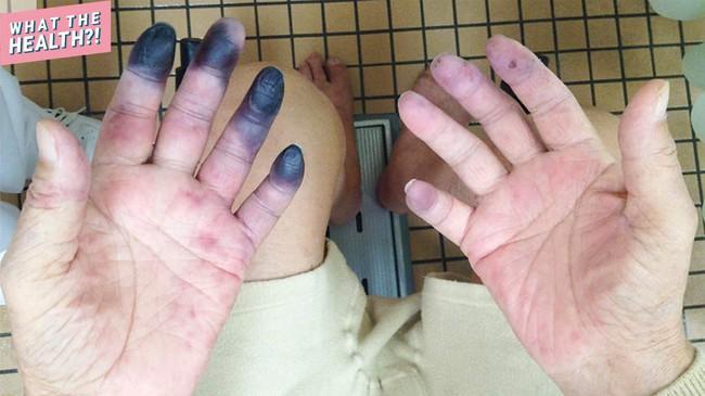 Ngón tay và ngón chân của người ông này bỗng chuyển sang màu đen sì - dấu hiệu cảnh báo bệnh nguy hiểm - Ảnh 1.