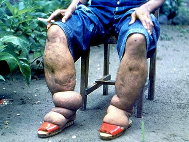 Bàn chân sưng to gấp 3 lần vì nhiễm giun sán khiến cô gái 21 tuổi có khả năng mất cả tương lai - Ảnh 4.