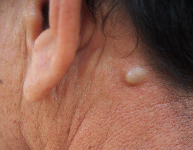 Nếu bỗng nhiên thấy sưng hoặc nổi cục ở cổ và tai, đừng bao giờ bỏ qua những khả năng này - Ảnh 2.