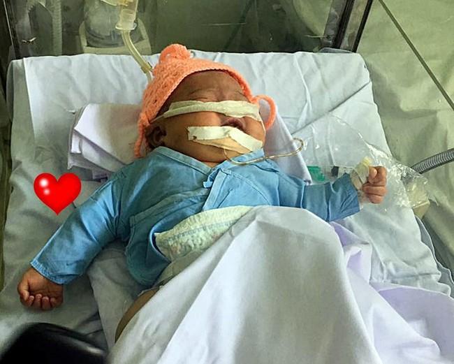 Bé sơ sinh gãy tay, nguy kịch vì bác sĩ đỡ đẻ sai cách - Ảnh 2.