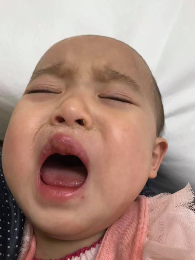 Mẹ Việt ở Nhật kể lại hành trình cả nhà 5 người bị nhiễm virus Herpes vì lây nhiễm từ con gái út - Ảnh 2.