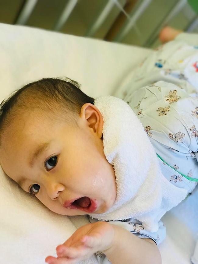 Mẹ Việt ở Nhật kể lại hành trình cả nhà 5 người bị nhiễm virus Herpes vì lây nhiễm từ con gái út - Ảnh 7.