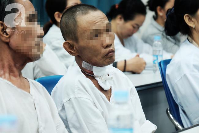 Bác sĩ Sài Gòn mổ bướu giáp cho người phụ nữ qua… miệng, tưởng điên rồ nhưng 3 giờ sau đã cử động được miệng - Ảnh 3.