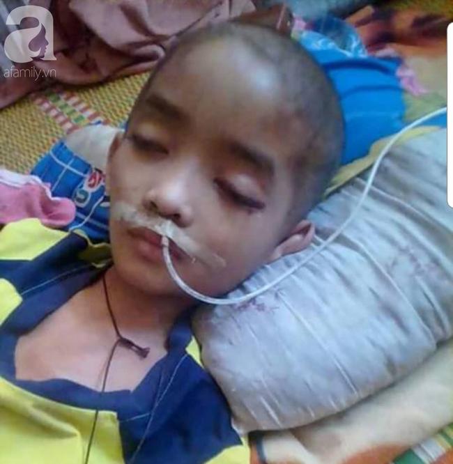 Minh Vương, bé trai 10 tuổi chiến đấu với căn bệnh u não bằng tất cả sự lạc quan đã ra đi mãi mãi - Ảnh 8.