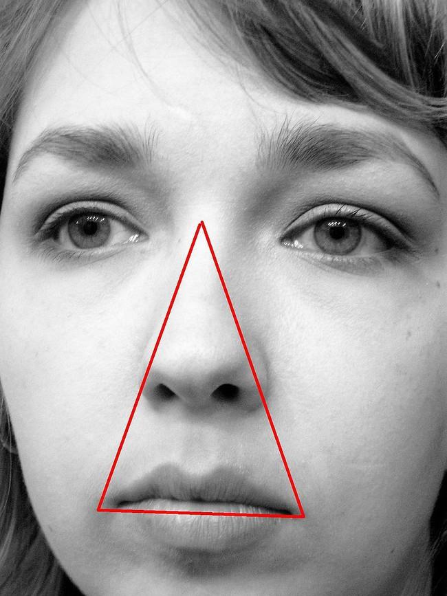 Bé gái suýt mất mạng vì mẹ nặn mụn, và đây là lý do vì sao bạn tuyệt đối nên tránh động chạm đến vùng tam giác tử thần - Ảnh 3.