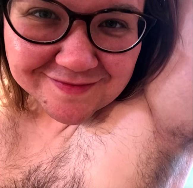 Chỉ 1 hành động của bác sĩ mà người phụ nữ có lông rậm khắp người này không còn tự ti và muốn phô ra cho mọi người thấy - Ảnh 4.