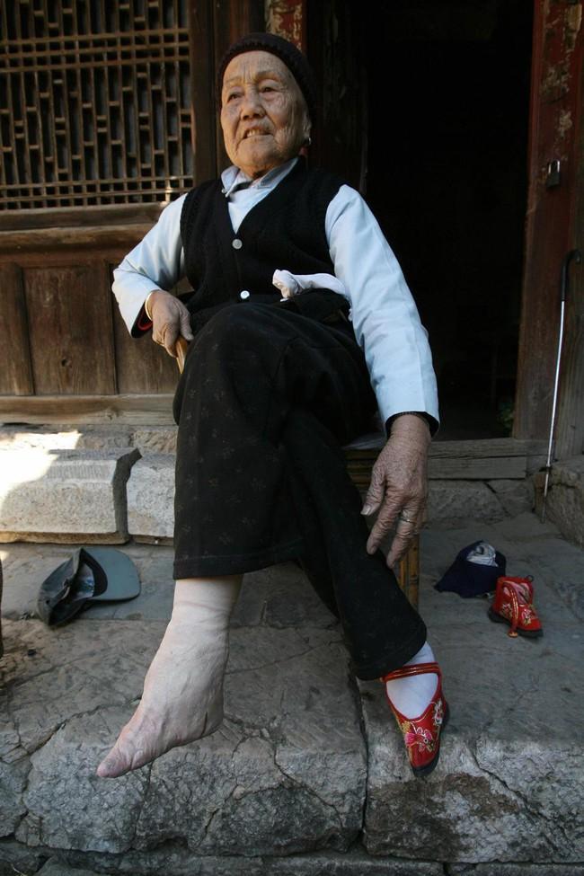 Tục Bó chân gót sen của Trung Quốc xưa: Hình ảnh những đôi chân rỉ máu và biến dạng khiến phụ nữ thời nay phải nín thở nổi da gà - Ảnh 1.
