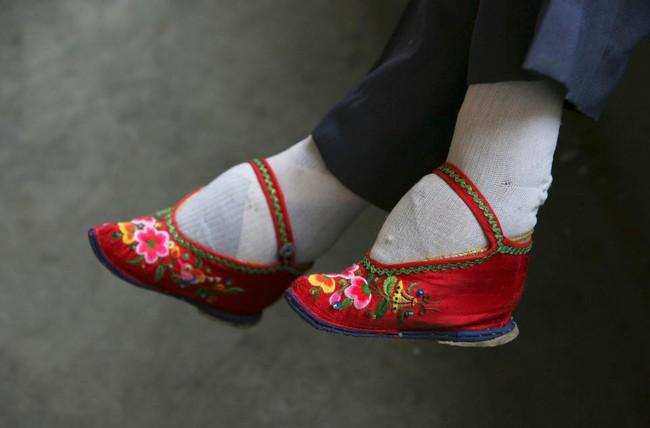 Tục Bó chân gót sen của Trung Quốc xưa: Hình ảnh những đôi chân rỉ máu và biến dạng khiến phụ nữ thời nay phải nín thở nổi da gà - Ảnh 11.