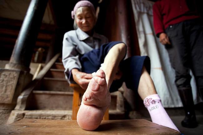 Tục Bó chân gót sen của Trung Quốc xưa: Hình ảnh những đôi chân rỉ máu và biến dạng khiến phụ nữ thời nay phải nín thở nổi da gà - Ảnh 14.