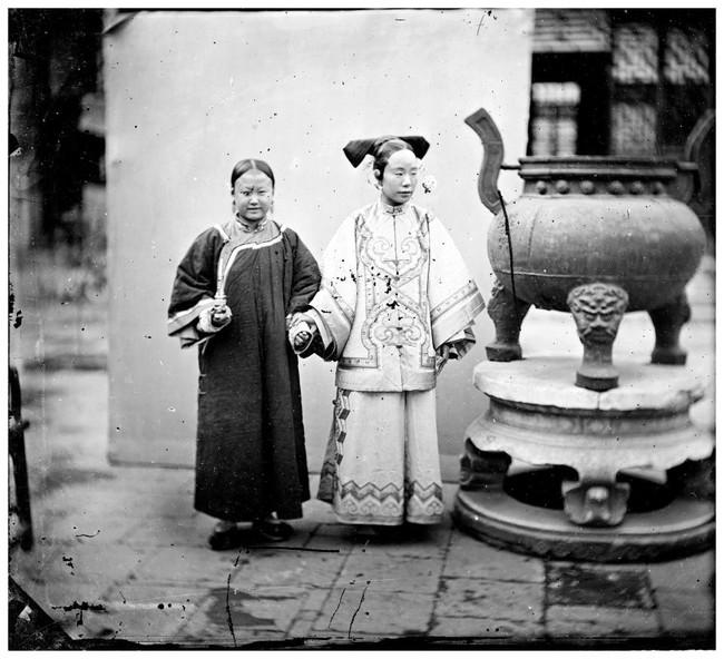 Tục Bó chân gót sen của Trung Quốc xưa: Hình ảnh những đôi chân rỉ máu và biến dạng khiến phụ nữ thời nay phải nín thở nổi da gà - Ảnh 18.