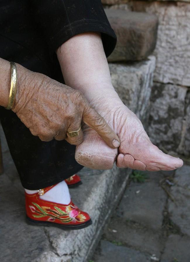 Tục Bó chân gót sen của Trung Quốc xưa: Hình ảnh những đôi chân rỉ máu và biến dạng khiến phụ nữ thời nay phải nín thở nổi da gà - Ảnh 2.