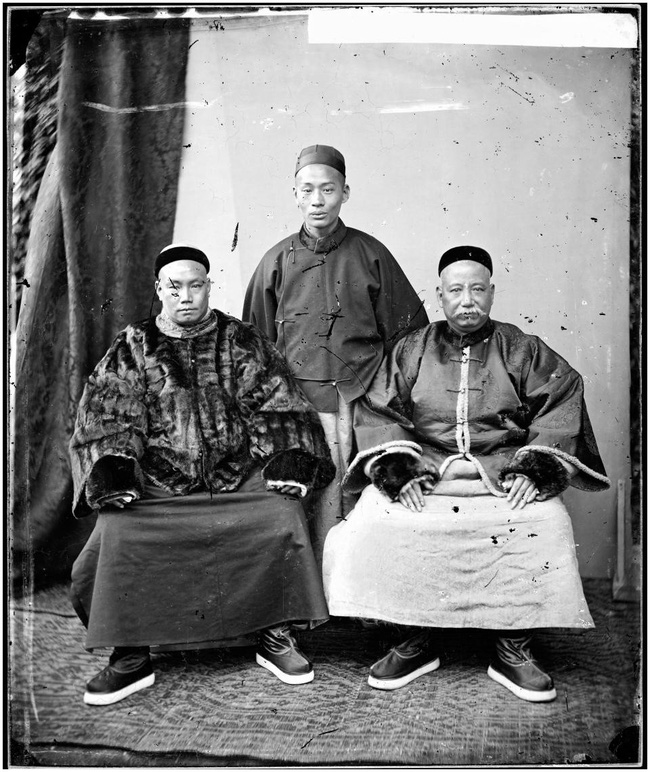 Tục Bó chân gót sen của Trung Quốc xưa: Hình ảnh những đôi chân rỉ máu và biến dạng khiến phụ nữ thời nay phải nín thở nổi da gà - Ảnh 20.