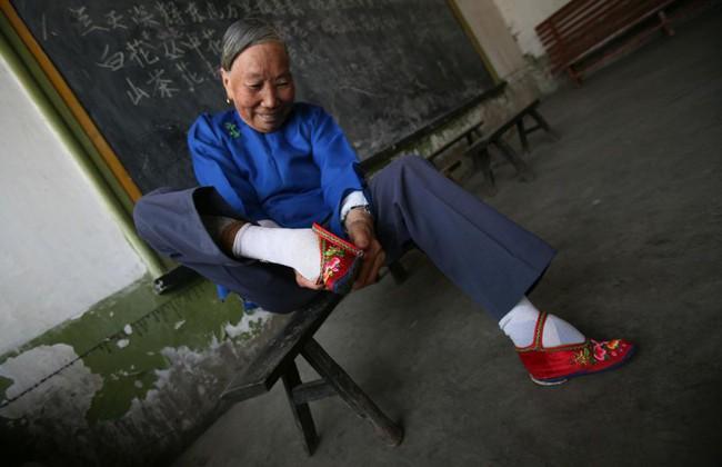 Tục Bó chân gót sen của Trung Quốc xưa: Hình ảnh những đôi chân rỉ máu và biến dạng khiến phụ nữ thời nay phải nín thở nổi da gà - Ảnh 5.