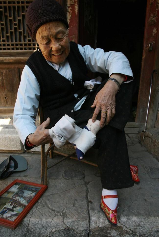 Tục Bó chân gót sen của Trung Quốc xưa: Hình ảnh những đôi chân rỉ máu và biến dạng khiến phụ nữ thời nay phải nín thở nổi da gà - Ảnh 7.