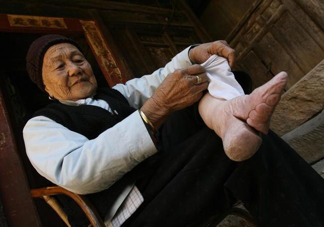 Tục Bó chân gót sen của Trung Quốc xưa: Hình ảnh những đôi chân rỉ máu và biến dạng khiến phụ nữ thời nay phải nín thở nổi da gà - Ảnh 8.