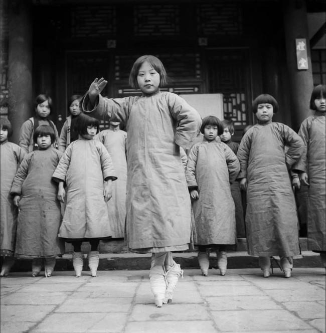 Tục Bó chân gót sen của Trung Quốc xưa: Hình ảnh những đôi chân rỉ máu và biến dạng khiến phụ nữ thời nay phải nín thở nổi da gà - Ảnh 9.