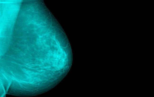 Chủ quan khi thấy vết ố màu xanh lá dính ở phần ngực áo sơ mi, người phụ nữ không ngờ đó là dấu hiệu ung thư vú - Ảnh 1.
