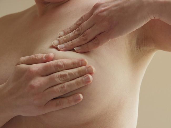 Chủ quan khi thấy vết ố màu xanh lá dính ở phần ngực áo sơ mi, người phụ nữ không ngờ đó là dấu hiệu ung thư vú - Ảnh 4.