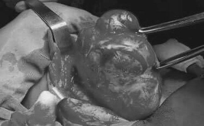 Thấy con gái có khối u ở cổ, từ chối mổ để tự hết, cha mẹ bàng hoàng khi biết là ung thư - Ảnh 1.