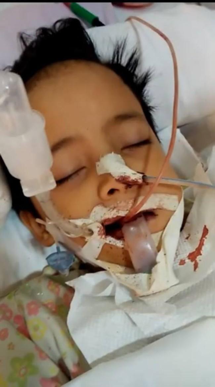 Con trai suýt mất mạng chỉ vì không được dạy đánh răng đúng cách, bà mẹ khẩn thiết kêu gọi phụ huynh chú ý đến việc tưởng đơn giản này - Ảnh 4.