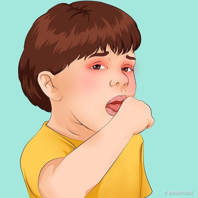 Có những căn bệnh nguy hiểm ở trẻ ẩn sau những triệu chứng tưởng là cảm sốt thông thường - Ảnh 3.