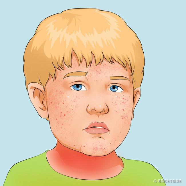 Có những căn bệnh nguy hiểm ở trẻ ẩn sau những triệu chứng tưởng là cảm sốt thông thường - Ảnh 4.