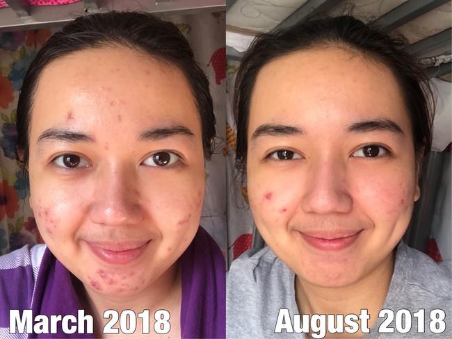 Làn da đầy mụn mẩn đỏ của cô nàng này đã thay đổi đến 90% sau 5 tháng áp dụng chu trình dưỡng da kiểu Hàn - Ảnh 2.