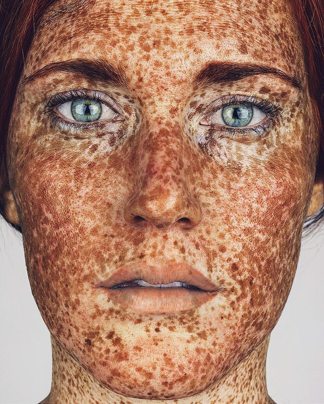 20 con người có ngoại hình đặc biệt như đến từ hành tinh khác, chứng minh một điều rằng cơ thể chúng ta quả thật quá sức kỳ lạ - Ảnh 3.