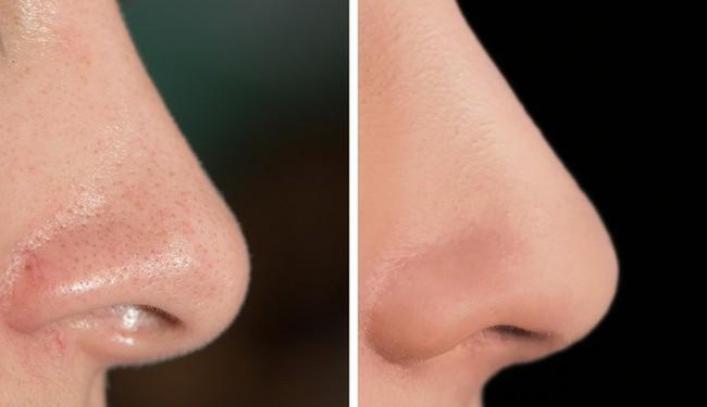 11 loại mặt nạ tự nhiên giúp chị em trẻ ra cả chục tuổi, lại có tác dụng chăm sóc toàn diện cho làn da - Ảnh 2.