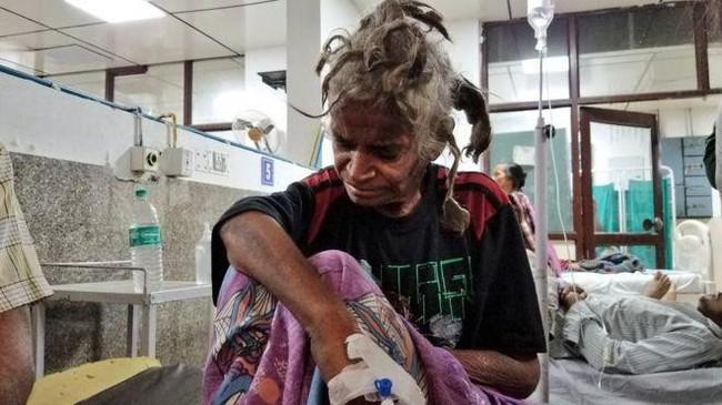 Anh ruột nhẫn tâm hành hạ và bỏ đói em gái đến thân tàn ma dại, chỉ cho ăn một lát bánh mì mỗi 4 ngày trong suốt 2 năm - Ảnh 1.