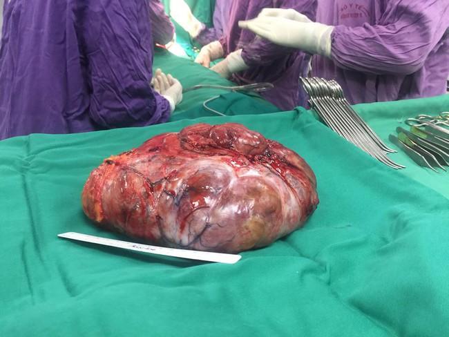 Phẫu thuật cắt bỏ thành công khối u vú khổng lồ cho bệnh nhân ở Phú Thọ - Ảnh 3.