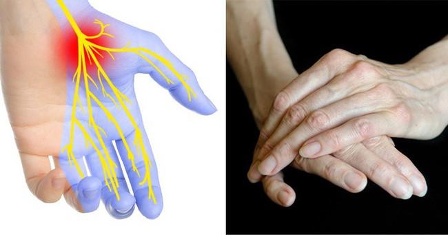 7 biểu hiện ở đôi tay tiết lộ các bệnh mà cơ thể đang mắc, dấu hiệu đầu tiên cảnh báo bạn đang bị bệnh gan đấy - Ảnh 3.