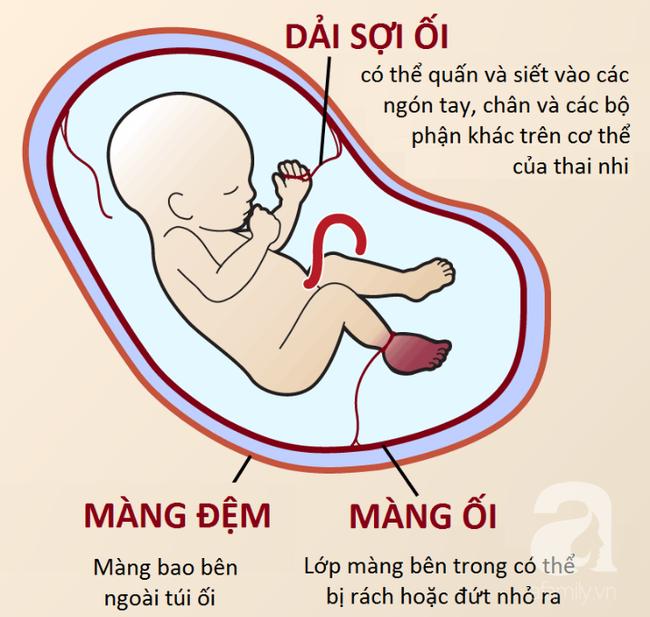Mẹ lặng người khi sinh con ra không có bàn tay, bác sĩ mổ tìm thấy 1 bàn tay bé xíu còn nằm trong tử cung - Ảnh 4.