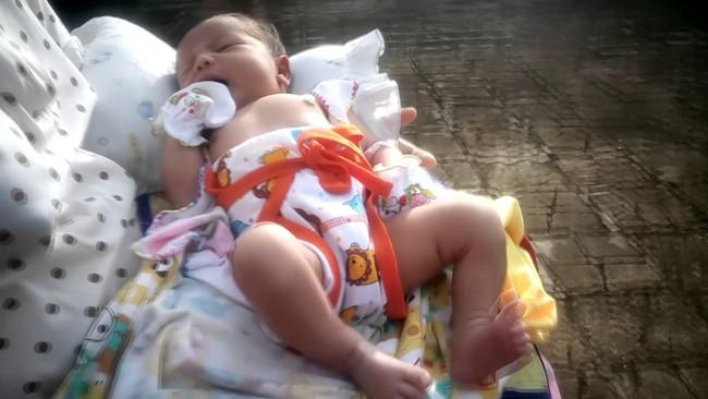 Hầu hết cha mẹ Việt đang tắm nắng cho con sai cách - Ảnh 1.