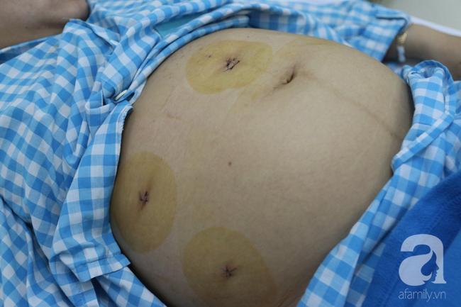 Mang thai 7 tháng nhưng bất ngờ đau bụng, người phụ nữ suýt mất con và có nguy cơ vô sinh vì căn bệnh nguy hiểm này - Ảnh 1.