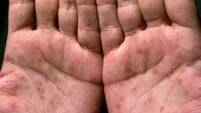Bệnh giang mai lây qua đường tình dục thường bắt đầu với những dấu hiệu này, mọi chị em cần nắm rõ - Ảnh 2.